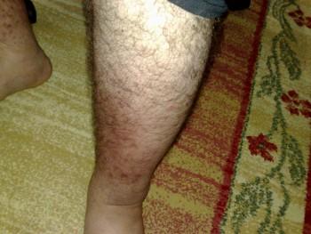 4e0ac7210497562 - Bacağımdaki şişme ve kızarıklık ne olabilir?